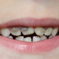 Early Childhood Infant tooth decay