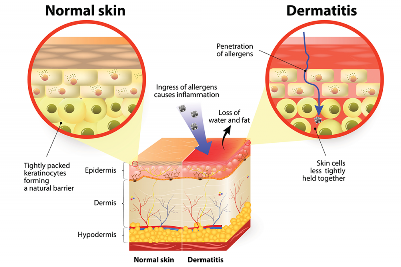 A graphic showing a cross section of normal skin vs a cross section of skin with dermatitis