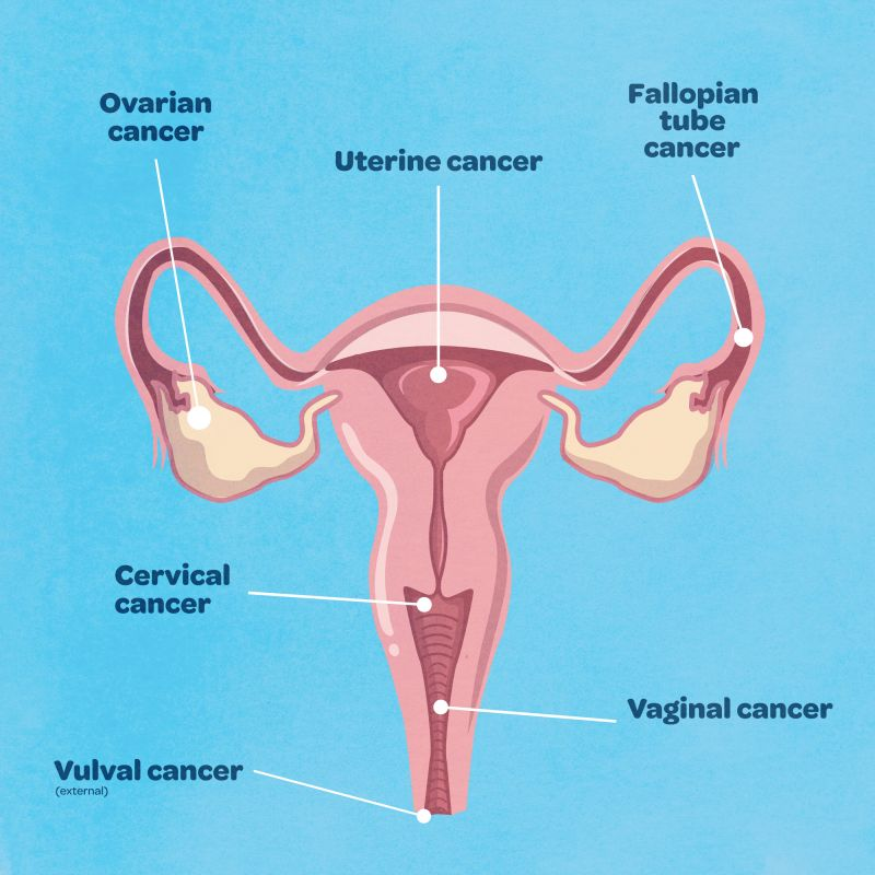 What Is Gynaecological Cancer And What Are The Symptoms Queensland Health