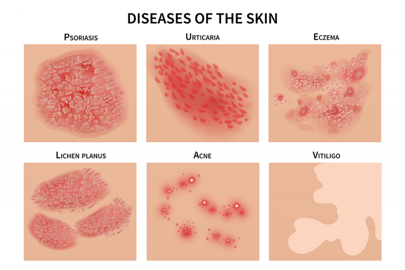 A graphic showing the characteristic markings of different diseases of the skin