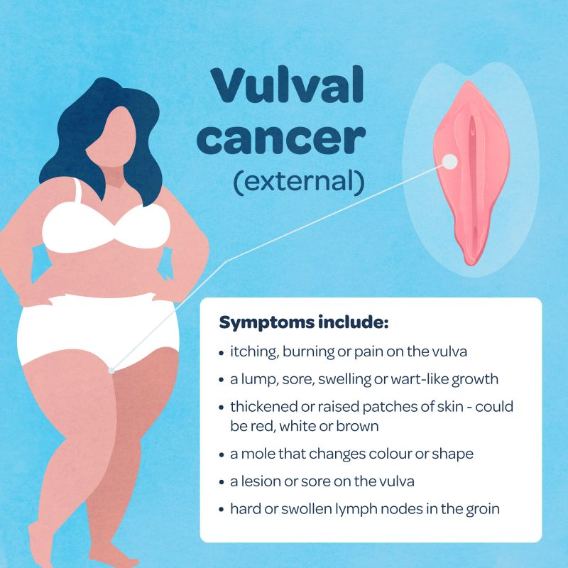 A graphic image showing the symptoms of vulval cancer, reading: itching, burning or pain on the vulva ·        a lump, sore, swelling or wart-like growth ·        thickened or raised patches of skin - could be red, white or brown ·        a mole that changes colour or shape ·        a lesion or sore on the vulva ·        hard or swollen lymph nodes in the groin