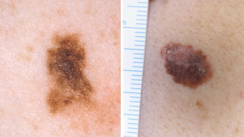 Two images of melanomas.
