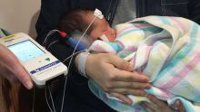 A hearing measurement device attached to an infant