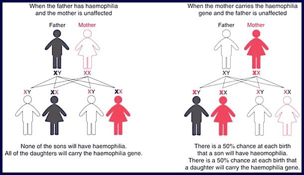 Chart on inheritance of haemophilia