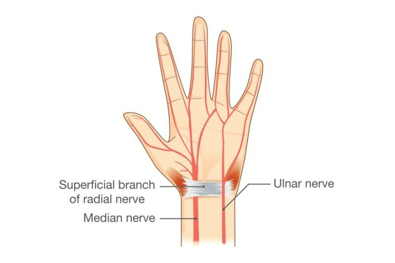 A diagram showing the nerves of the hand.